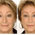 Radio Frequency For Skin Rejuvenation Reduce Lines Amp Wrinkles